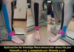 Aplicación de vendaje neuromuscular para la mejora de la marcha y el equilibrio en mayores