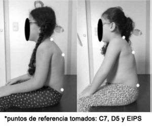 Comparativa y conclusión de los efectos del vendaje neuromuscular en el alineamiento postural en casos de parálisis cerebral de tipo diparesia espástica